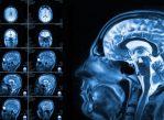 МРТ головного мозга используется для диагностики и наблюдения при самых разных неврологических заболеваниях. Возможно, в скором времени его начнут применять и для ранней диагностики аутизма.