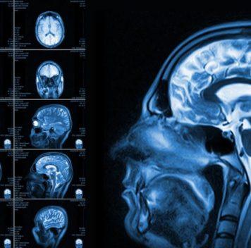 МРТ может помочь вранней диагностике аутизма