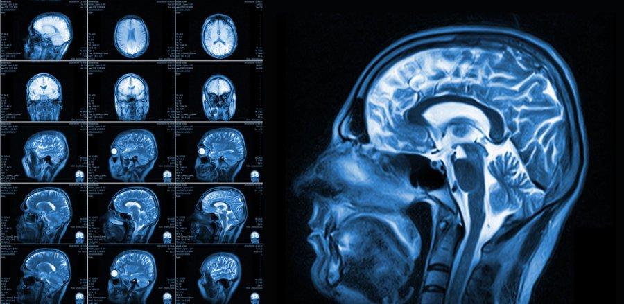 МРТ головного мозга используется для диагностики инаблюдения при самых разных неврологических заболеваниях. Возможно, вскором времени его начнут применять идля ранней диагностики аутизма.