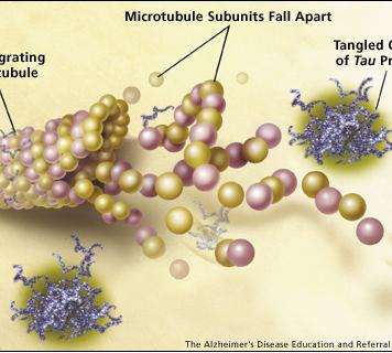 Синтез патологического белка при болезни Альцгеймера можно остановить