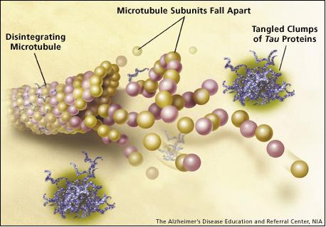 Изменение структуры тау-белка приводит кразрушению микротрубочек иформированию узлов или клубков, состоящих из патологического протеина.