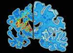 Мозг пациента, страдающего болезнью Альцгеймера (слева) постепенно уменьшается в размерах из-за гибели нейронов. Новый препарат оказался не способен остановить этот процесс.