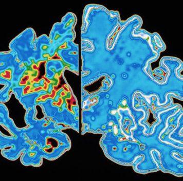 Новый препарат для лечения болезни Альцгеймера оказался неэффективен