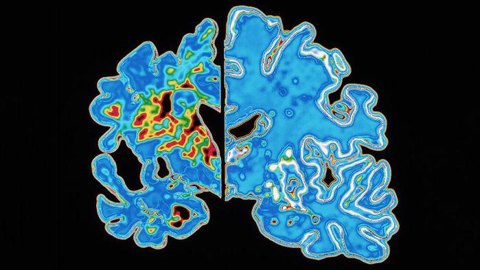 Мозг пациента, страдающего болезнью Альцгеймера (слева) постепенно уменьшается вразмерах из-за гибели нейронов. Новый препарат оказался неспособен остановить этот процесс.