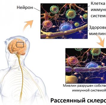 Рассеянный склероз удалось «заморозить» на5 лет