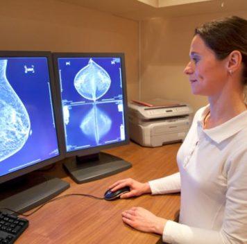 B-лимфоциты могут играть роль впредотвращении рака груди