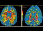 Мозг здорового человека (слева) и мозг человека, предположительно страдающего болезнью Альцгеймера (справа).