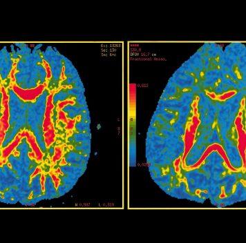 Риск болезни Альцгеймера можно оценить при помощи нуклеотидных замен