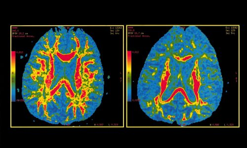 Мозг здорового человека (слева) имозг человека, предположительно страдающего болезнью Альцгеймера (справа).