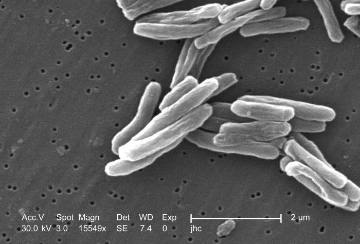 Микобактерия туберкулёза под микроскопом сувеличением 15549х. Длина одной бактерии— 2—4 микрон, толщина— 0,2—0,5 микрон.