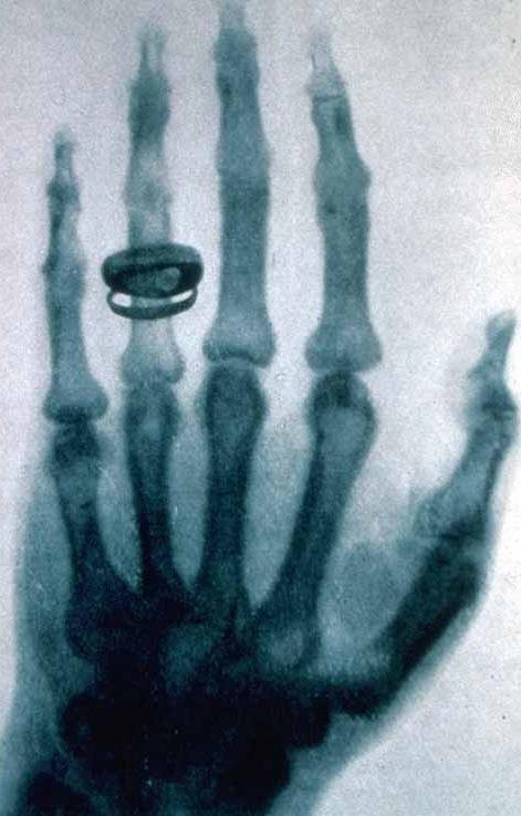 Рентгеновский снимок руки швейцарского гистолога ифизиолога Альберта фон Кёлликера, сделанный Рентгеном.