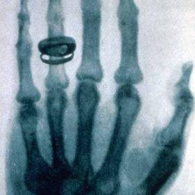 Рентгеновский снимок руки швейцарского гистолога и физиолога Альберта фон Кёлликера, сделанный Рентгеном.