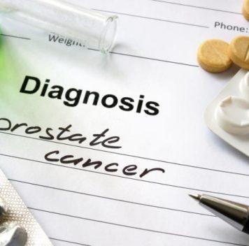 «Старые» антидепрессанты могут оказаться новым способом лечения рака простаты