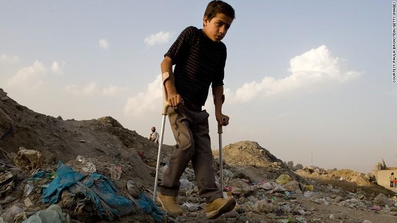 """""""Забытые"""" тропические болезни чаще всего поражают жителей беднейших районов, живущих вплохих санитарных условиях."""