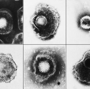 Герпесвирусы могут сохраняться вводе