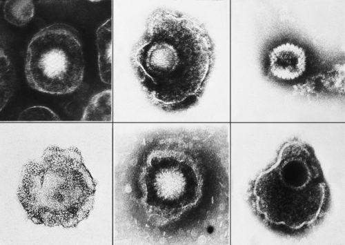 Герпесвирусы под электронным микроскопом.
