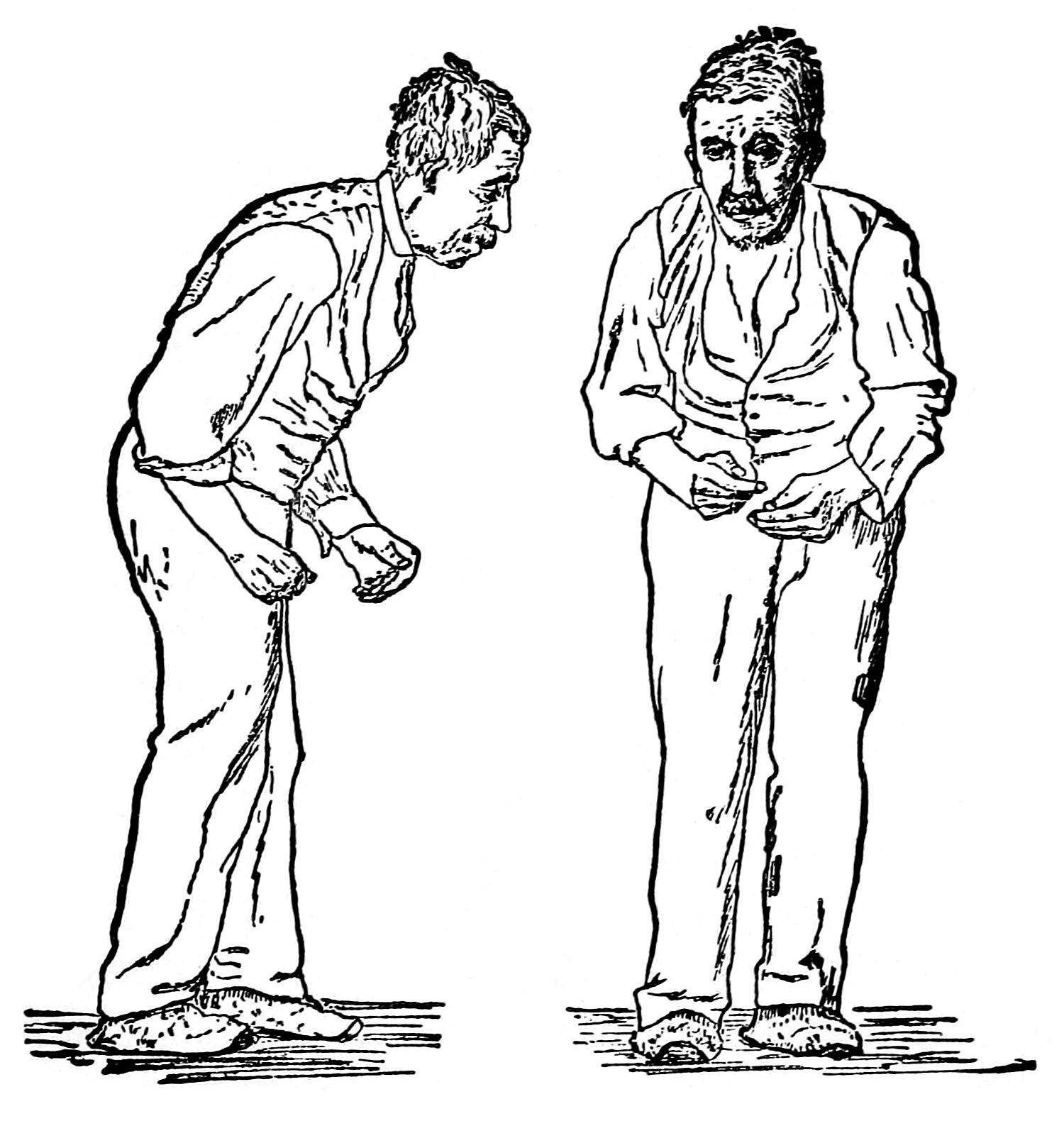 Пациент сболезнью Паркинсона. Рисунок из руководства 1886 года Уильяма Говерса.