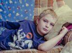 У привитых детей и взрослых паротит обычно протекает в лёгкой форме, поэтому пациентам обычно достаточно постельного режима и безрецептурных обезболивающих.