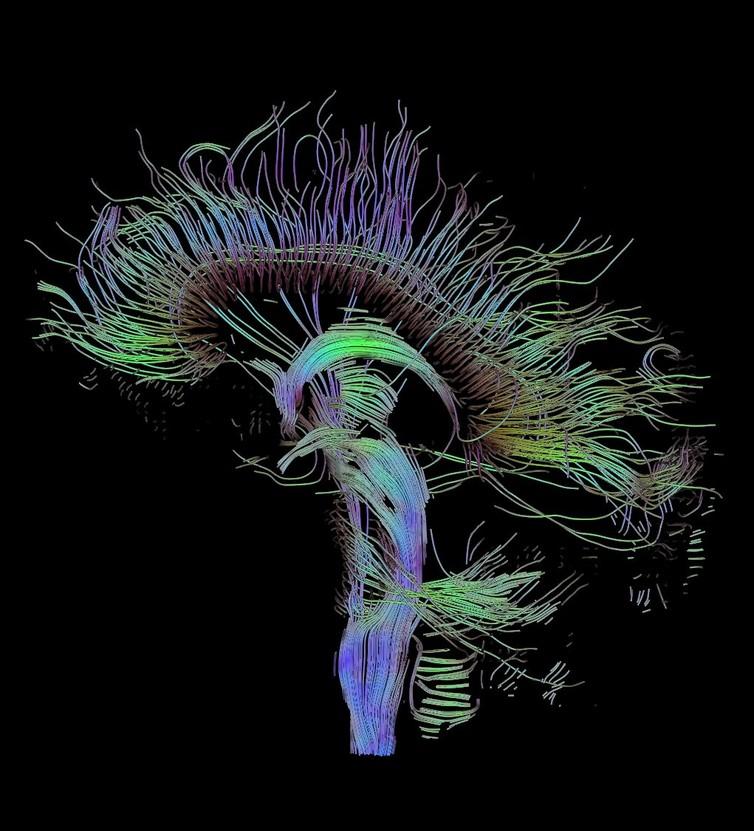 Карта нейронных связей