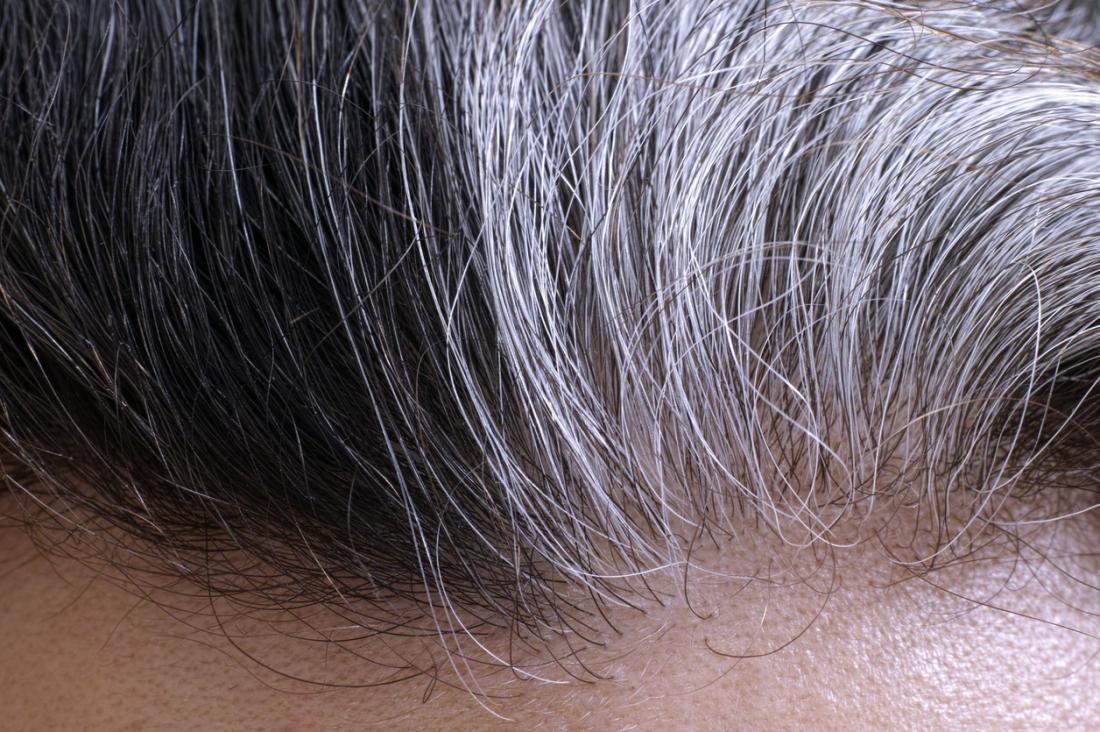 Седина ипотеря волос считаются неотъемлемыми признаками старения. Однако вбудущем ситуация может измениться.