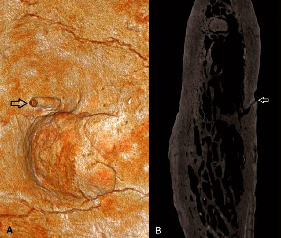А. Разрастание начелюсти крупным планом. Стрелкой показан канал, уходящий вглубь костной ткани— признак опухоли. B.— рентгеновский снимок челюсти.