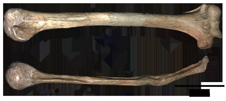 Среди известных неандертальских травм— предположительно, ампутированная выше локтя правая рука.  Нафото— плечевая кость пожилого неандертальца из пещеры Шанидар (внизу) со следами ампутации. Вверху— левая плечевая того же индивида, для сравнения.
