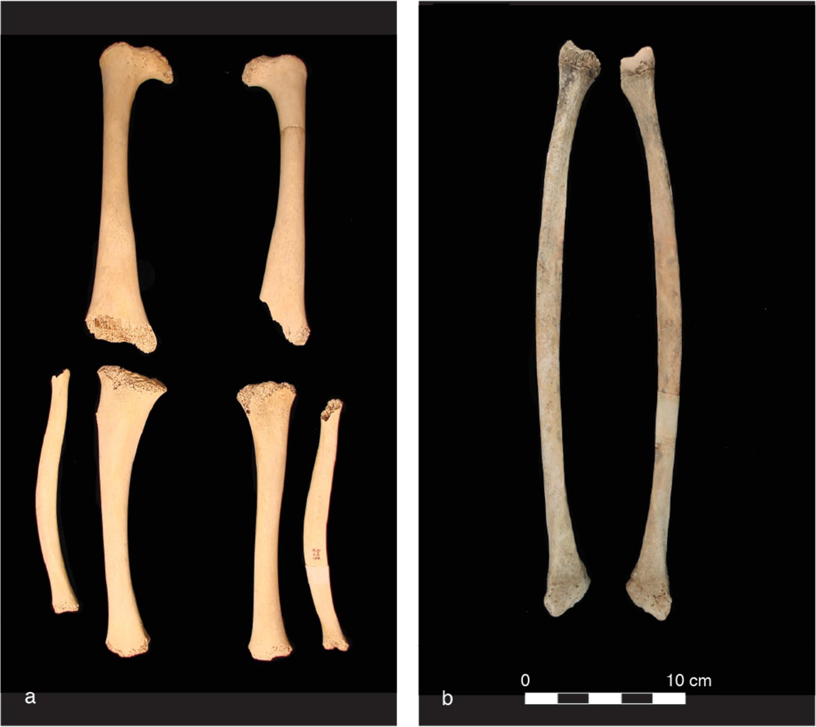 а. Деформированные длинные кости ребёнка 5—7 лет, больного рахитом.<br />b. Малоберцовая кость сдеформацией от перенесённого вдетстве рахита, взрослый индивид. Оба случая из погребения времён Римской империи (III вн.э.)