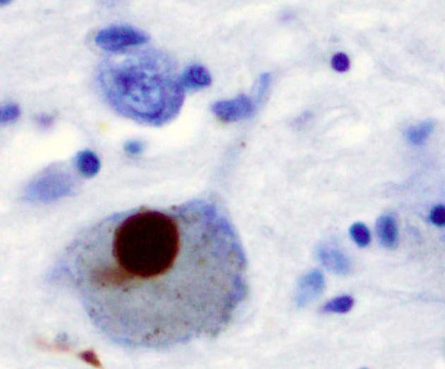 Болезнь Паркинсона ииммунитет. Новые сведения