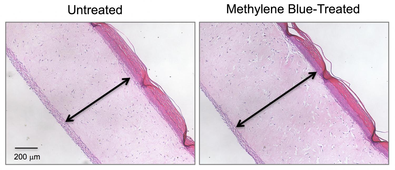 Под влиянием метиленового синего модель человеческой кожи (на фото справа) увеличила свою толщину, то есть, «помолодела».