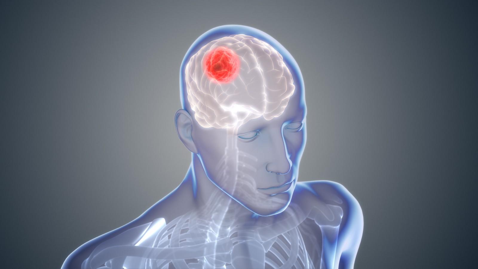 Глиобластома— одна из самых агрессивных иопасных злокачественных опухолей головного мозга. Даже при лечении современными препаратами выживаемость больных оставляет желать лучшего.