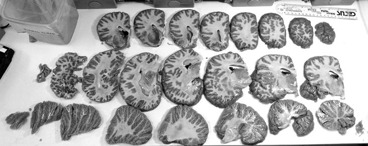 Мозг слона, разрезанный напоперечные секции