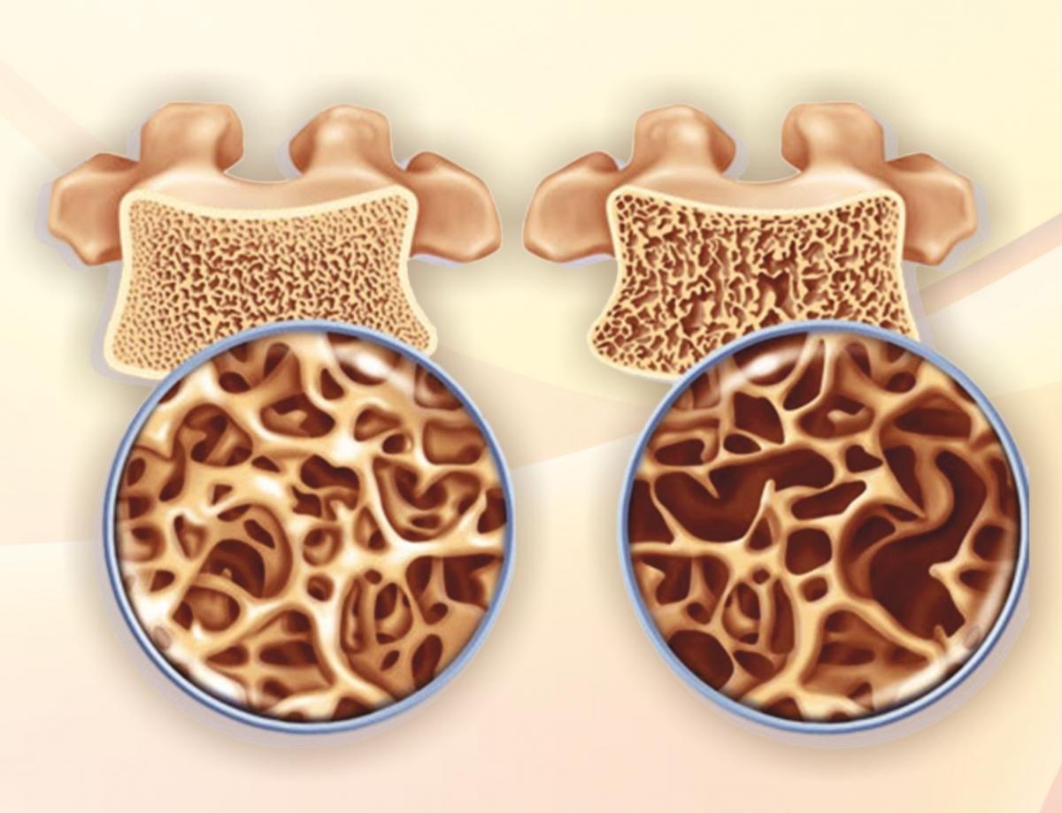 При остеопорозе уменьшается плотность костной ткани, что иприводит кповышению риска развития переломов.