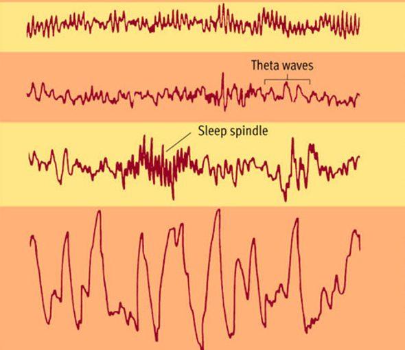 Электроэнцефалограмма мозговой активности во время сна различной глубины. Сверху вниз, от лёгкого до самого глубокого.