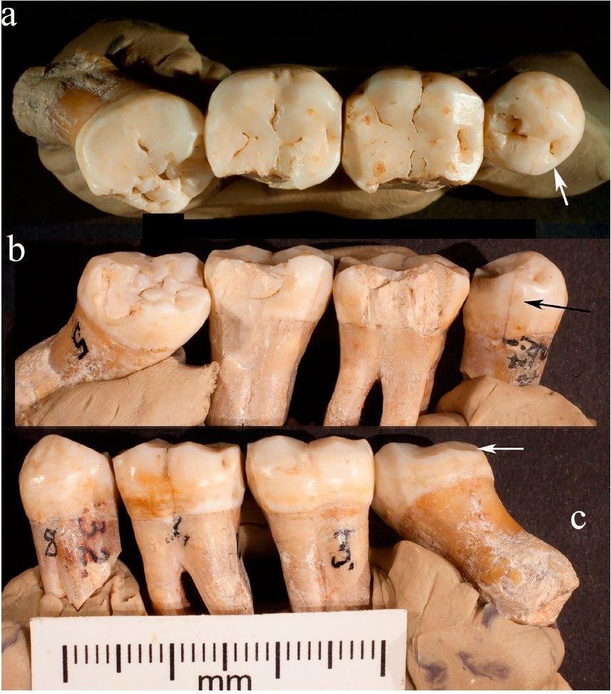 Зубы KDP-20 вразных проекциях.