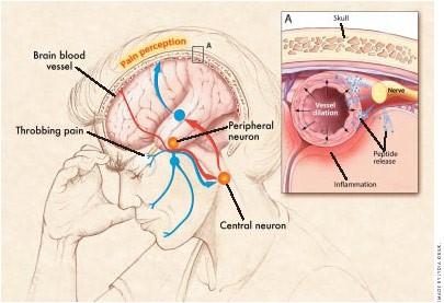 Рисунок 6. Схема развития мигрени. Выделение пептидов тканями нерва (синие точки) приводит красширению сосуда ивоспалению