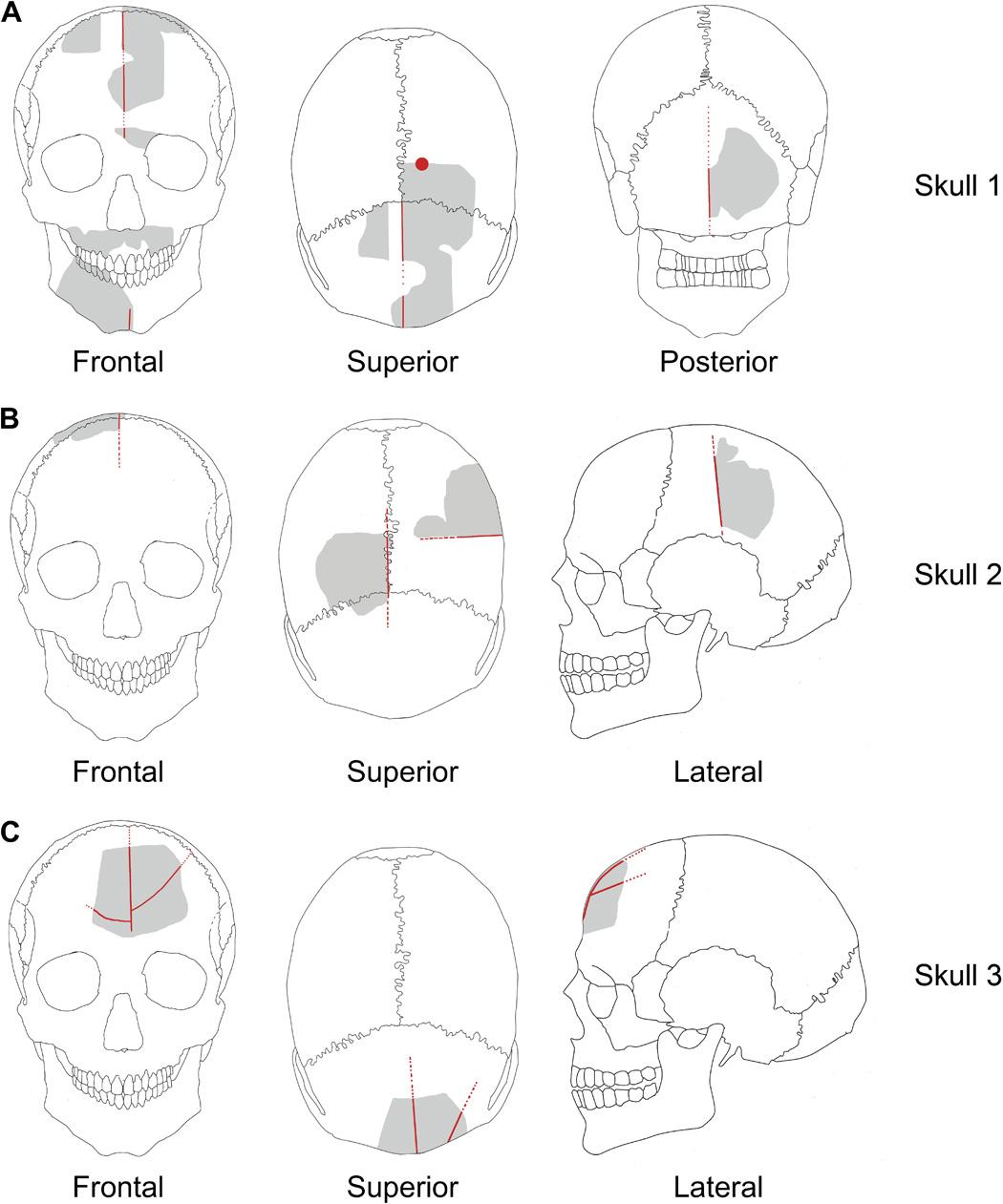 Схематические изображения найденных фрагментов черепов 1-3