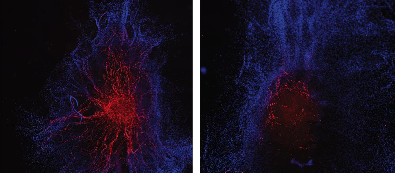 Обнаружен новый способ восстановления миелиновой оболочки нервов