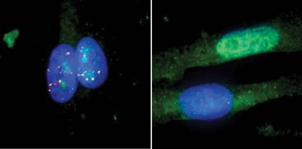 Мышечные клетки пациента смиодистрофией 1 типа до (слева) ипосле (справа) лечения. Повторяющаяся <abbr lang=