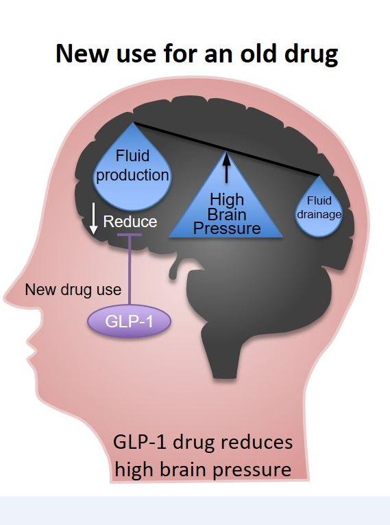 Препарат для лечения диабета уменьшает выработку жидкости итем самым способствует снижению внутричерепного давления.