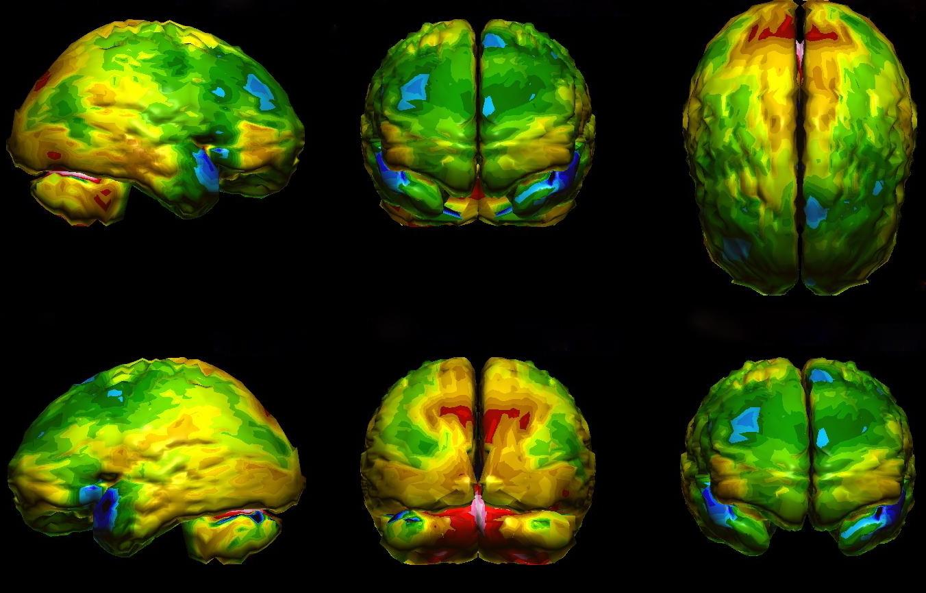 Пример изображения мозга, полученного при помощи технологии SPECT.