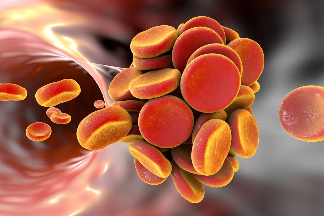3D-модель сгустка крови (тромба) вкровеносном сосуде.