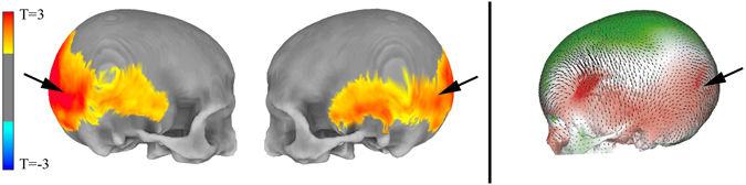 Изменения формы черепа, связанные сNeanderScore