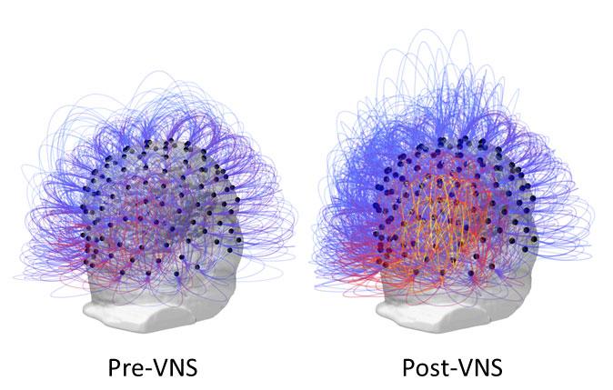 Схема связей вголовном мозге пациента до ипосле проведения стимуляции блуждающего нерва.