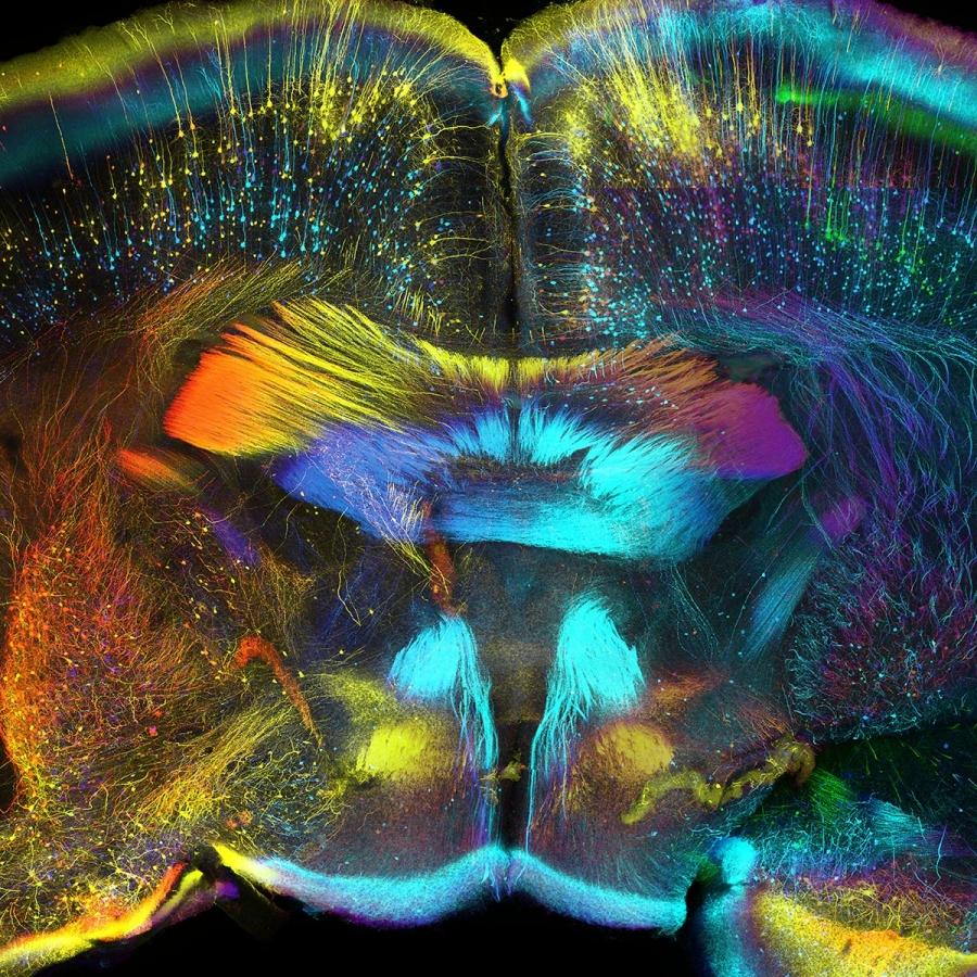 Фронтальная проекция одного из отделов мозга мыши. Автор: Luis de la Torre-Ubieta.