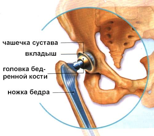 Схема используемого внастоящее время эндопротеза тазобедренного сустава. Возможно, вскоре ему насмену придут протезы из полиэтилена.
