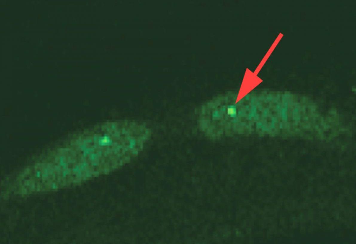 Обнаружен молекулярный механизм, связанный со старением
