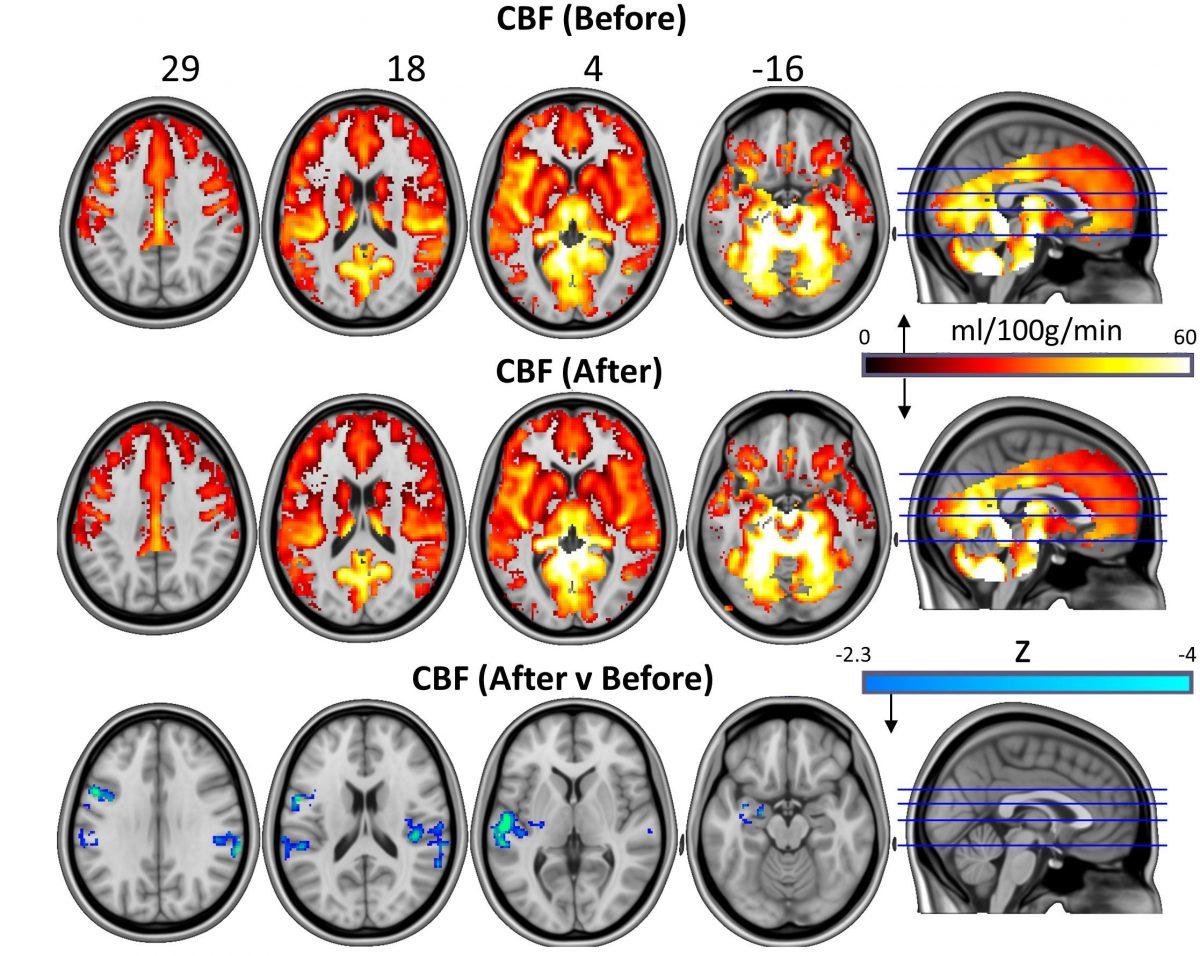 Карты кровоснабжения мозга: базовые, через сутки после лечения ивсравнении. Credit: Carhart-Harris, R et al. Scientific Reports 2017