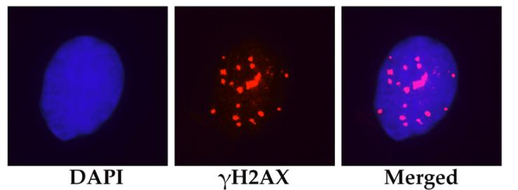 Микрофотография ядра мезенхимальной стволовой клетки человека.