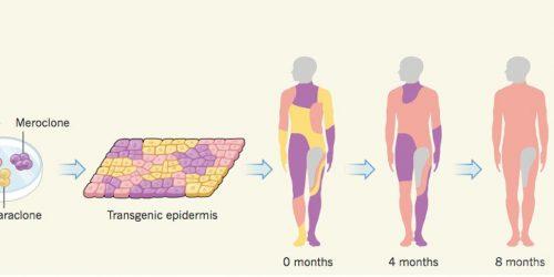 Учёные вырастили ипересадили мальчику 80% кожи