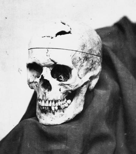Фотография черепа Финеаса Гейджа, сделанная доктором Джоном Харлоу.